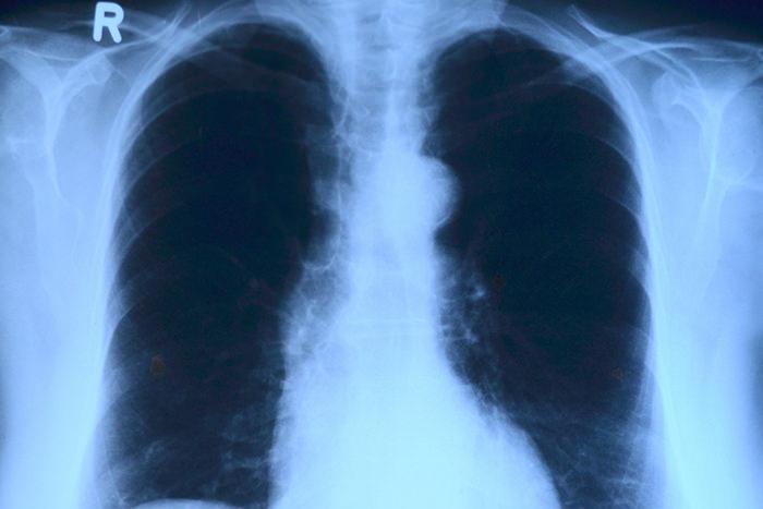 胸部X線検査